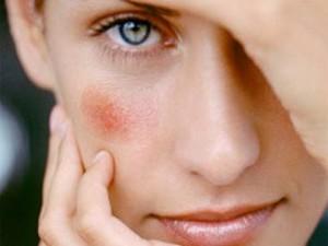 Сосудистая сеточка на лице: как быть?